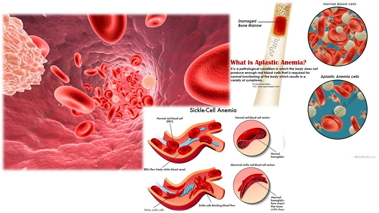 Aplastic Anemia Epidemiology Forecast to 2025