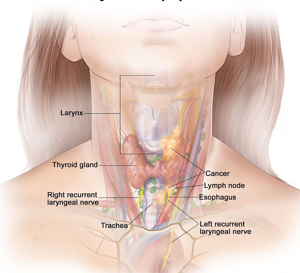 thyroid cancer 6