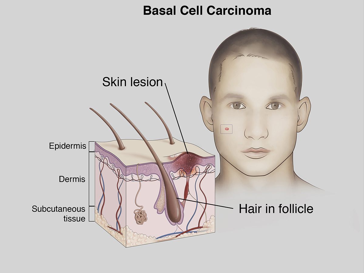 Basal Cell Carcinoma Illustration