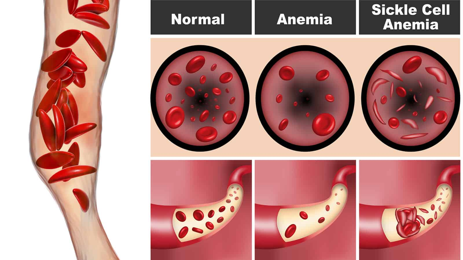 Doctors Explain the Causes and Signs of Sickle Cell Anemia 1600x900