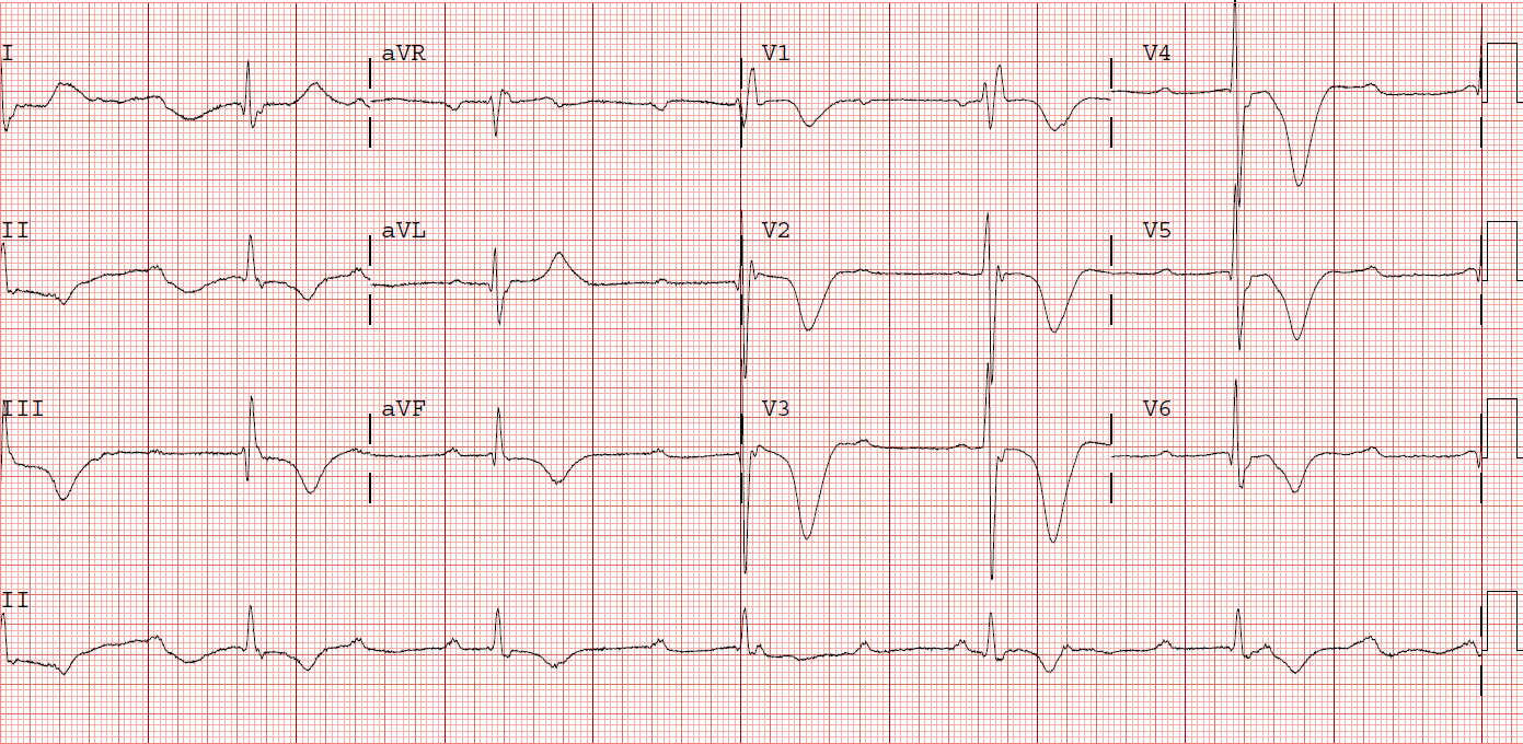 First ECG of Stokes Adams attack