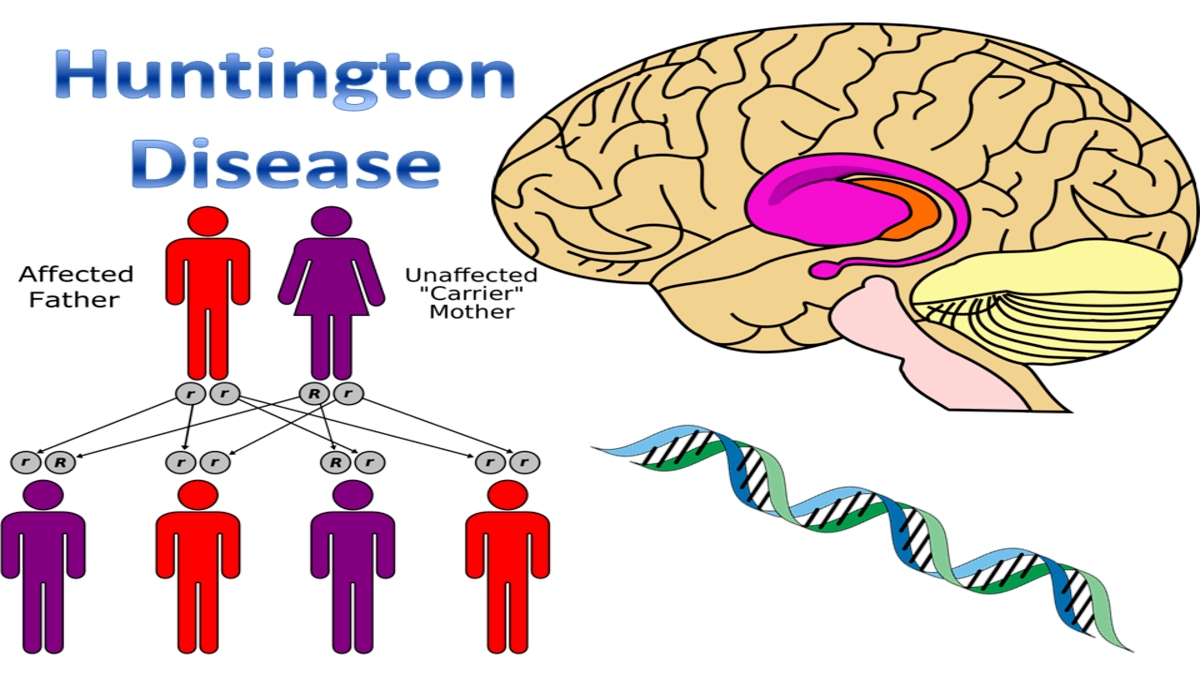 Huntingtons Disease 1