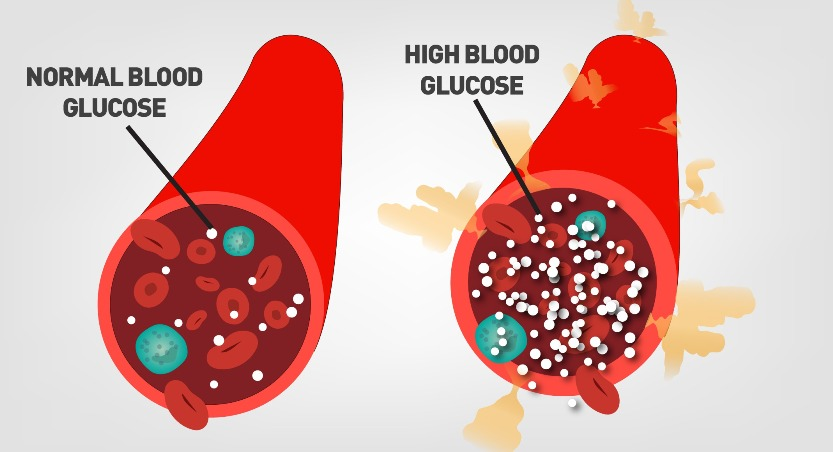 Hyperglycemia high blood sugar
