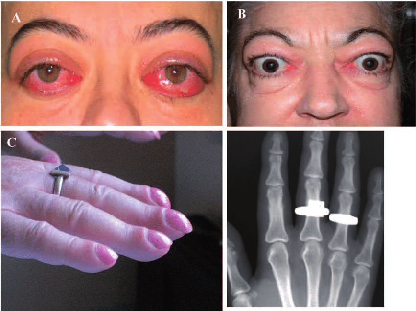 Images of extrathyroidal features of Graves disease characteristic features of thyroid