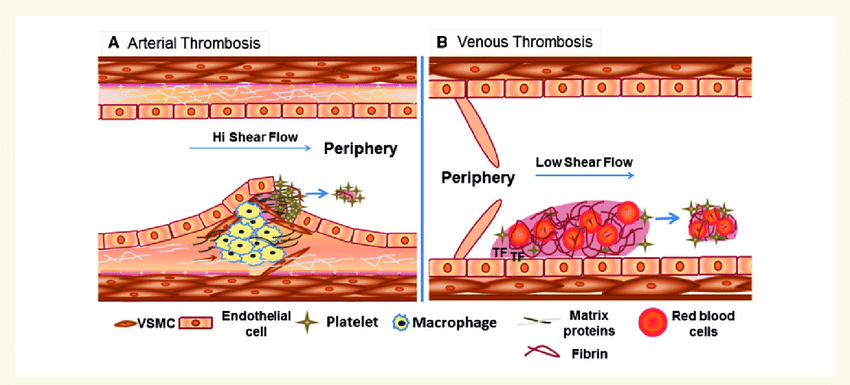 Major differences between arterial and venous thrombosis A Arterial thrombosis occurs