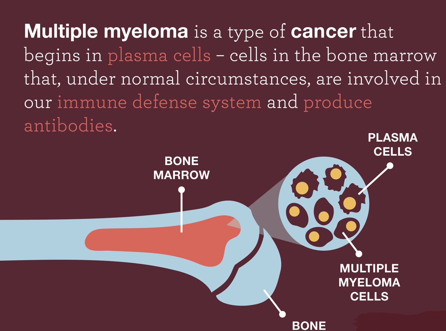 Multiple Myeloma foods 1