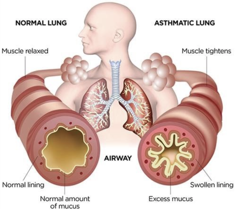 Normal Lung vs Asthmatic Lung