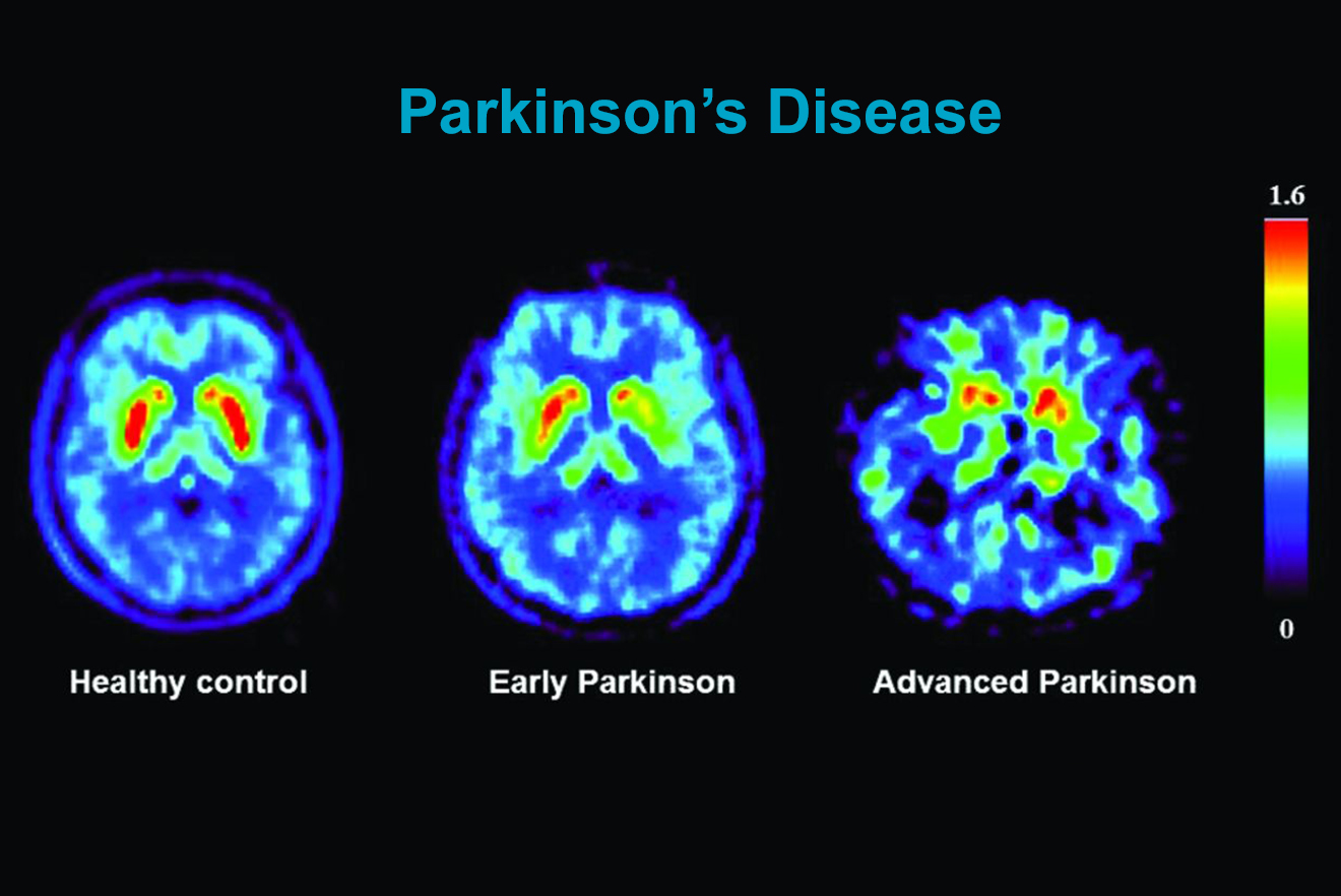 Parkinsons Disease Paseidonia Healthcare 3