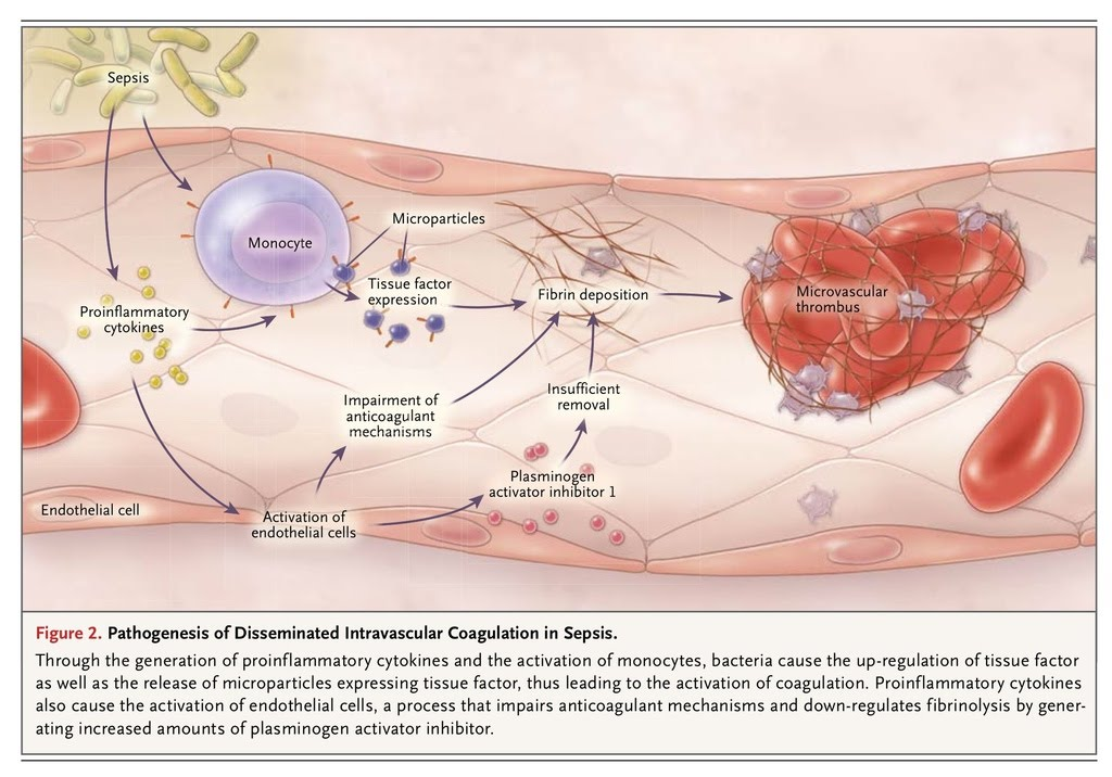 Pathogenesis of DIC Disseminated intravascular coagulation