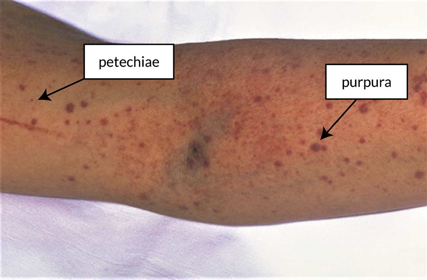 Purpura and petechiae