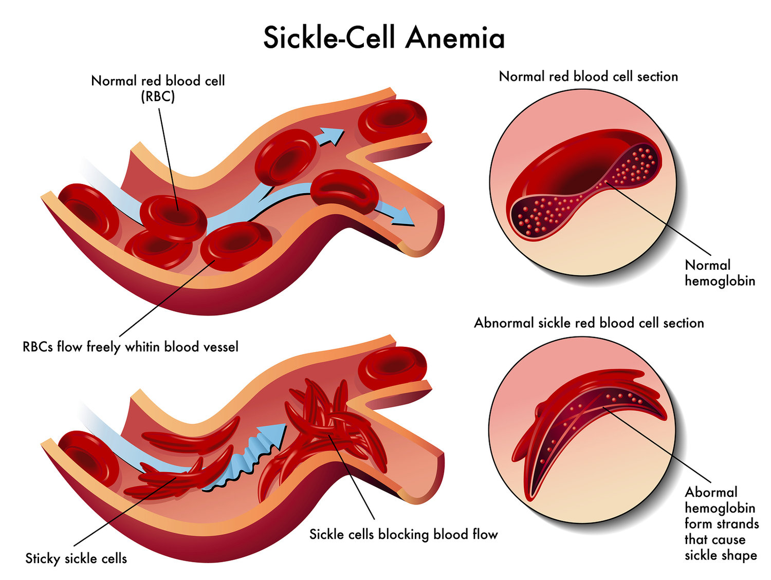 Risk Factors for Sickle Cell Anemia 12
