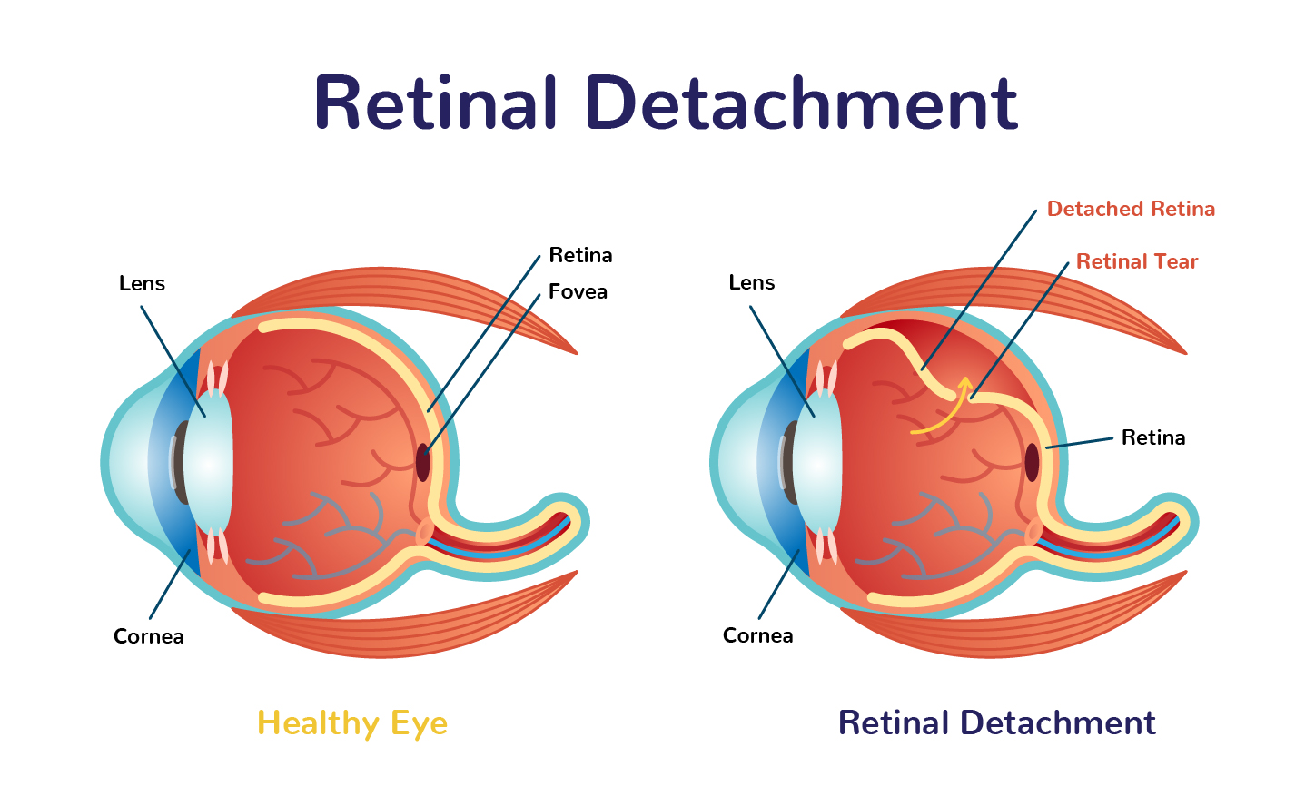 ShadyGrove Blog DetachedRetina Infographic