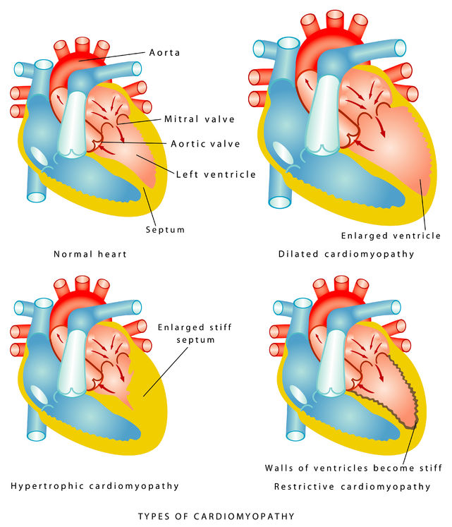 Types of cardiomyopathy
