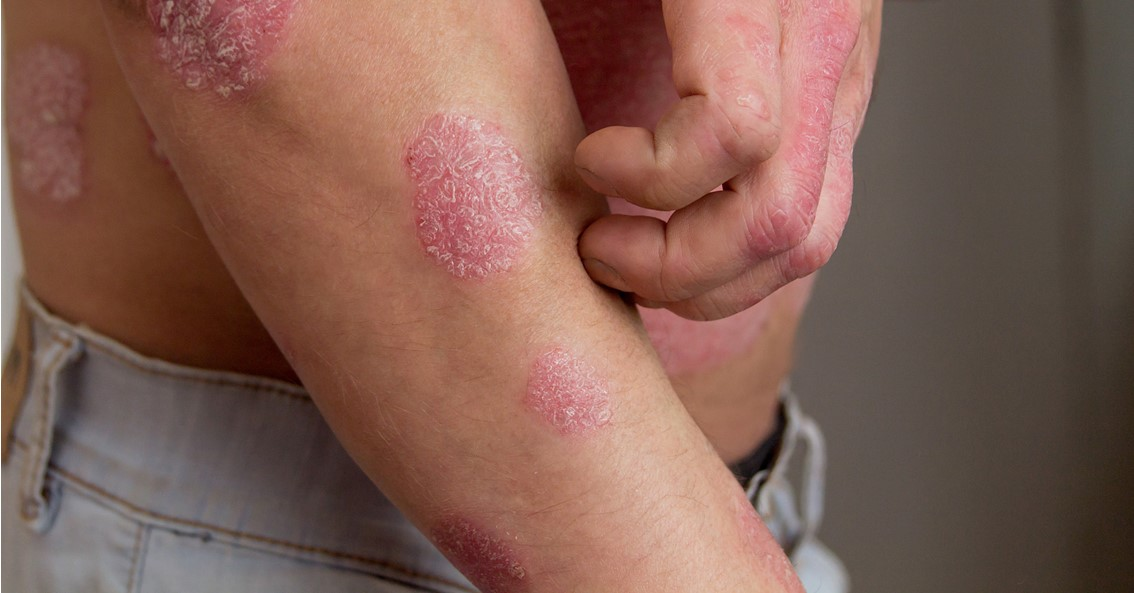 What Is The Best Dyshidrotic Eczema Treatment 1