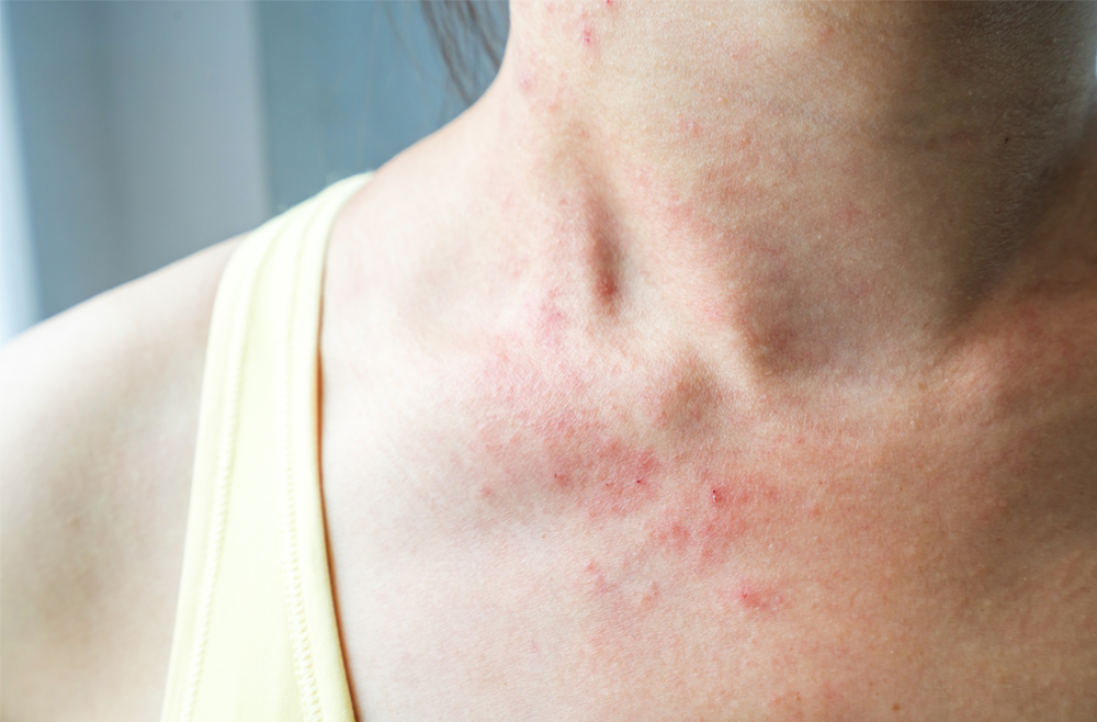 atopic dermatitis news release