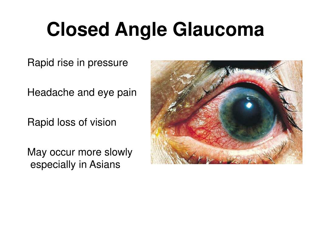 closed angle glaucoma4 l