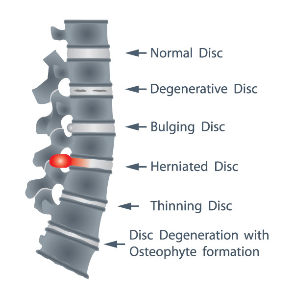 disorders of intervertebral