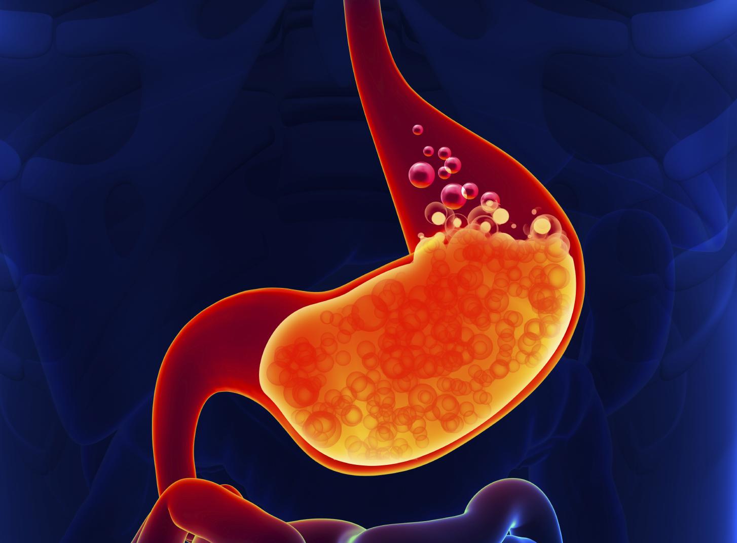 gastrooisophage 1