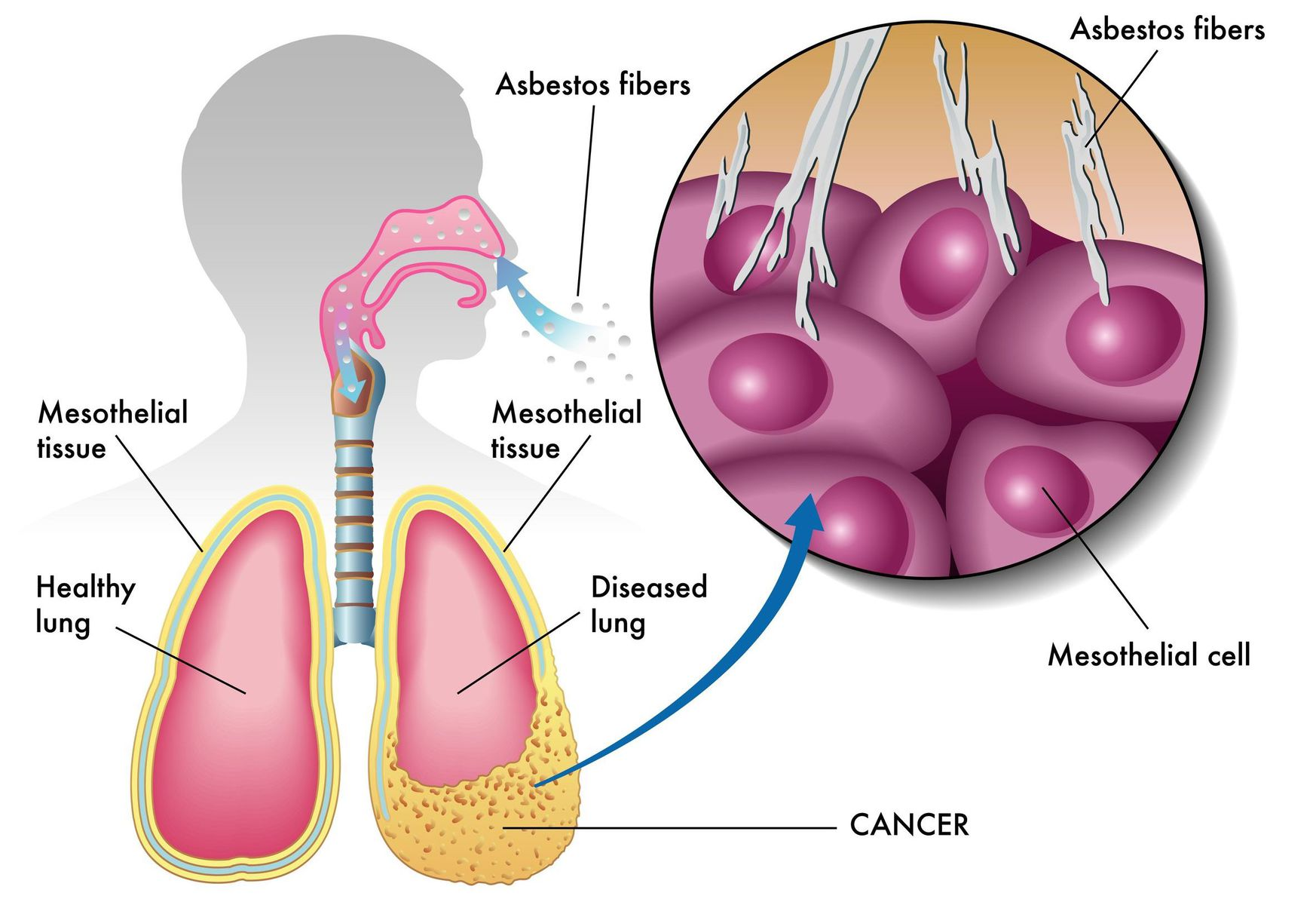 mesothelioma caused by asbestos