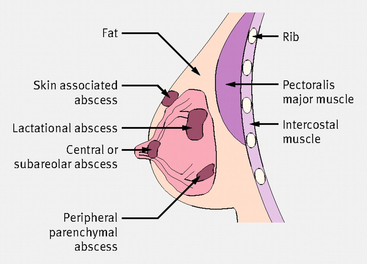breast abcess 1