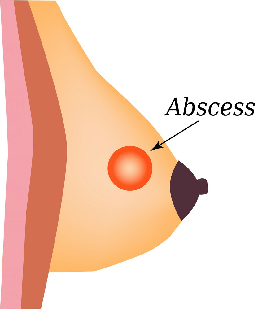 breast abcess 4