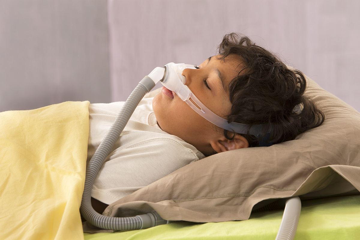 pediatric sleep apnea OSA MCG
