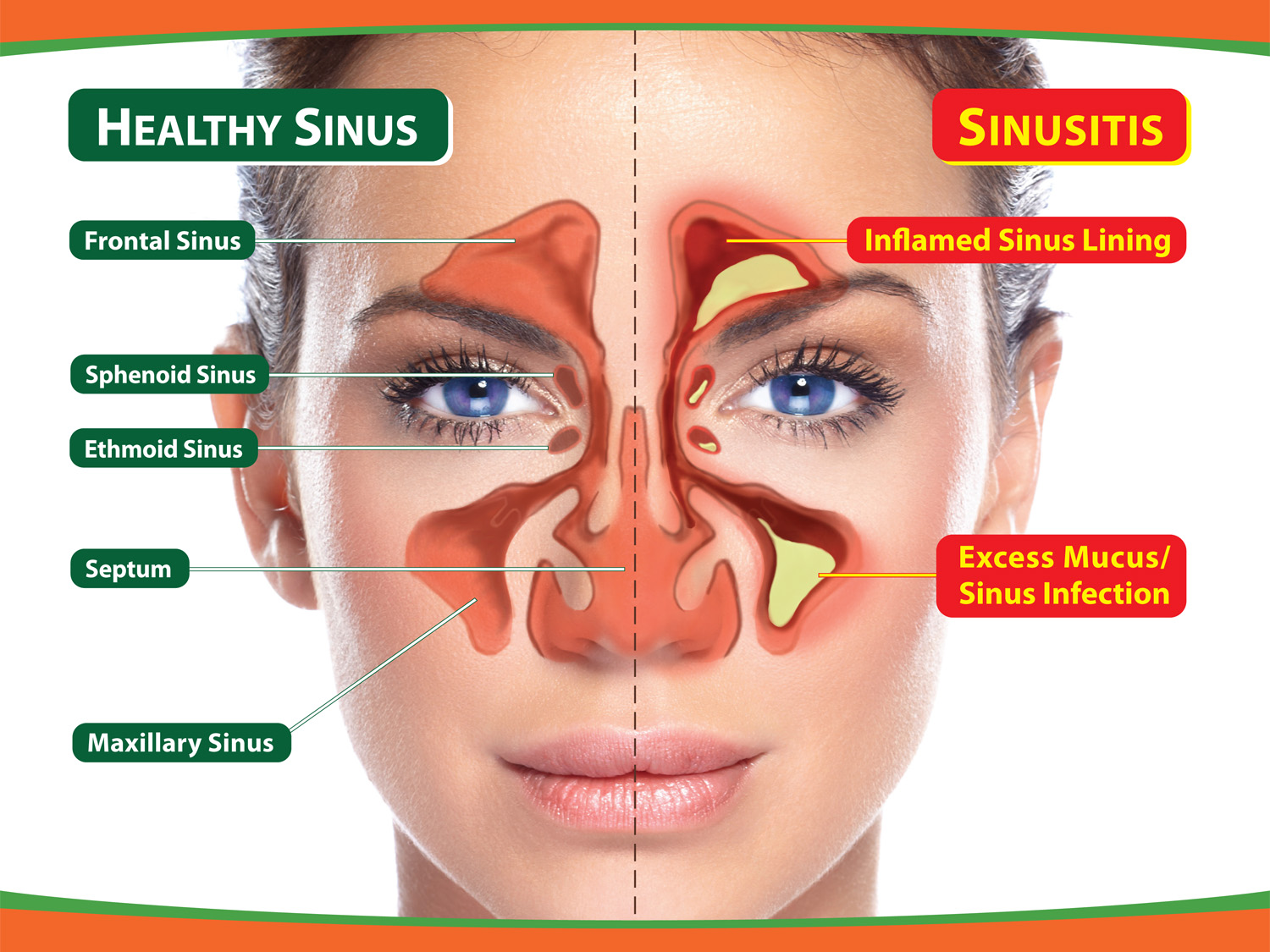 sinus disease