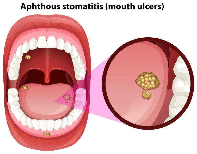 ulcers in mouth