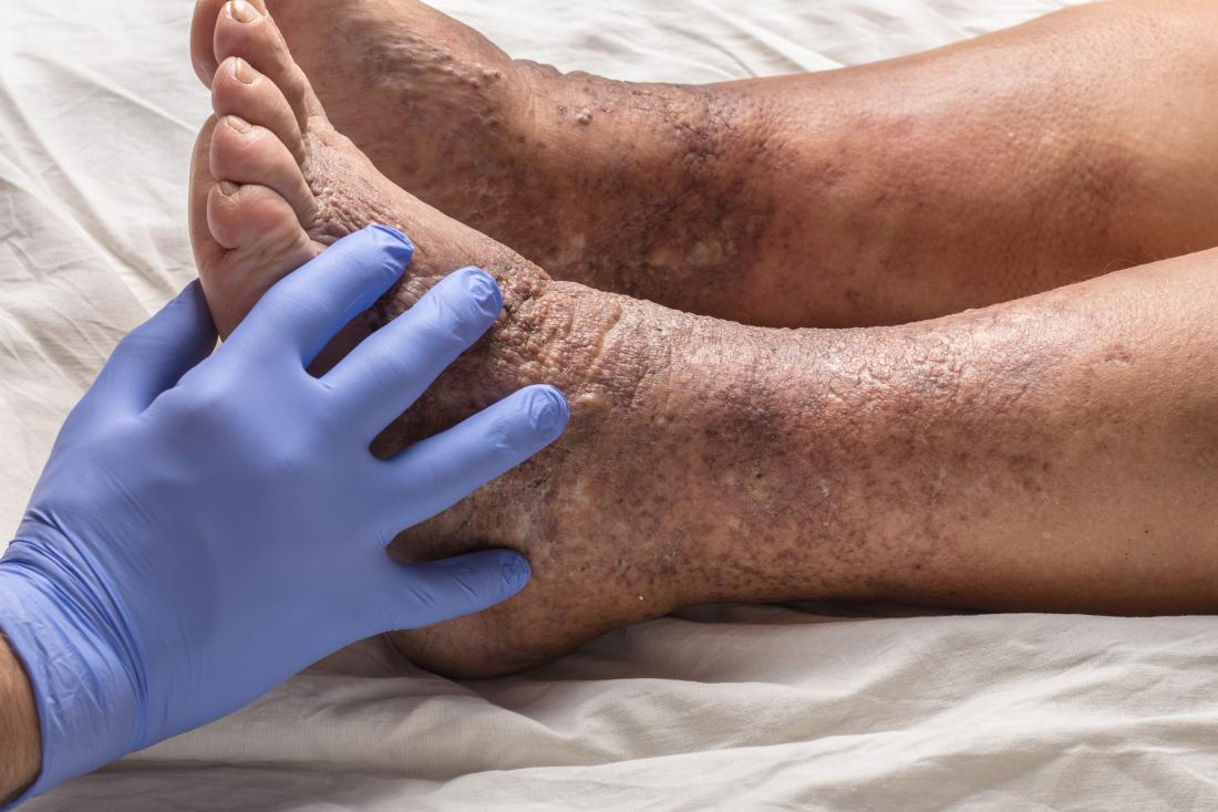 varicose dermatitis or eczema on ankle