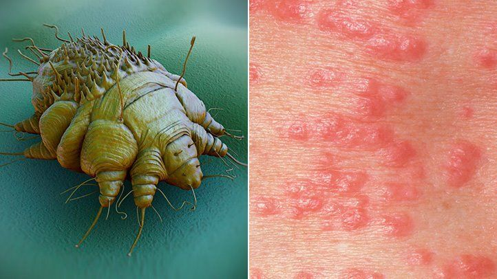 what is scabies rm 722x406